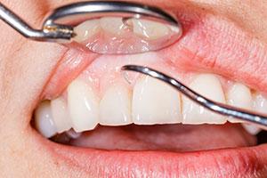 gum examination