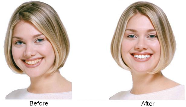 teethwhitening-before-and-after
