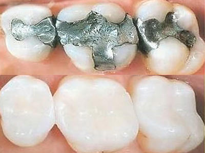 Restorative dental treatments dentist tweed heads banora point tooth fillings solutioingenieria Choice Image